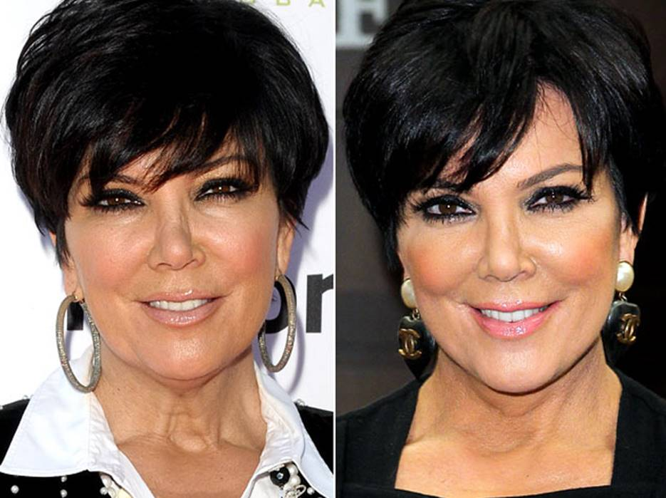 Kris Jenner Before and After